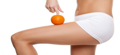 Cellulite-Rimedi-naturali